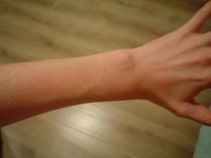 dunne onderarmen